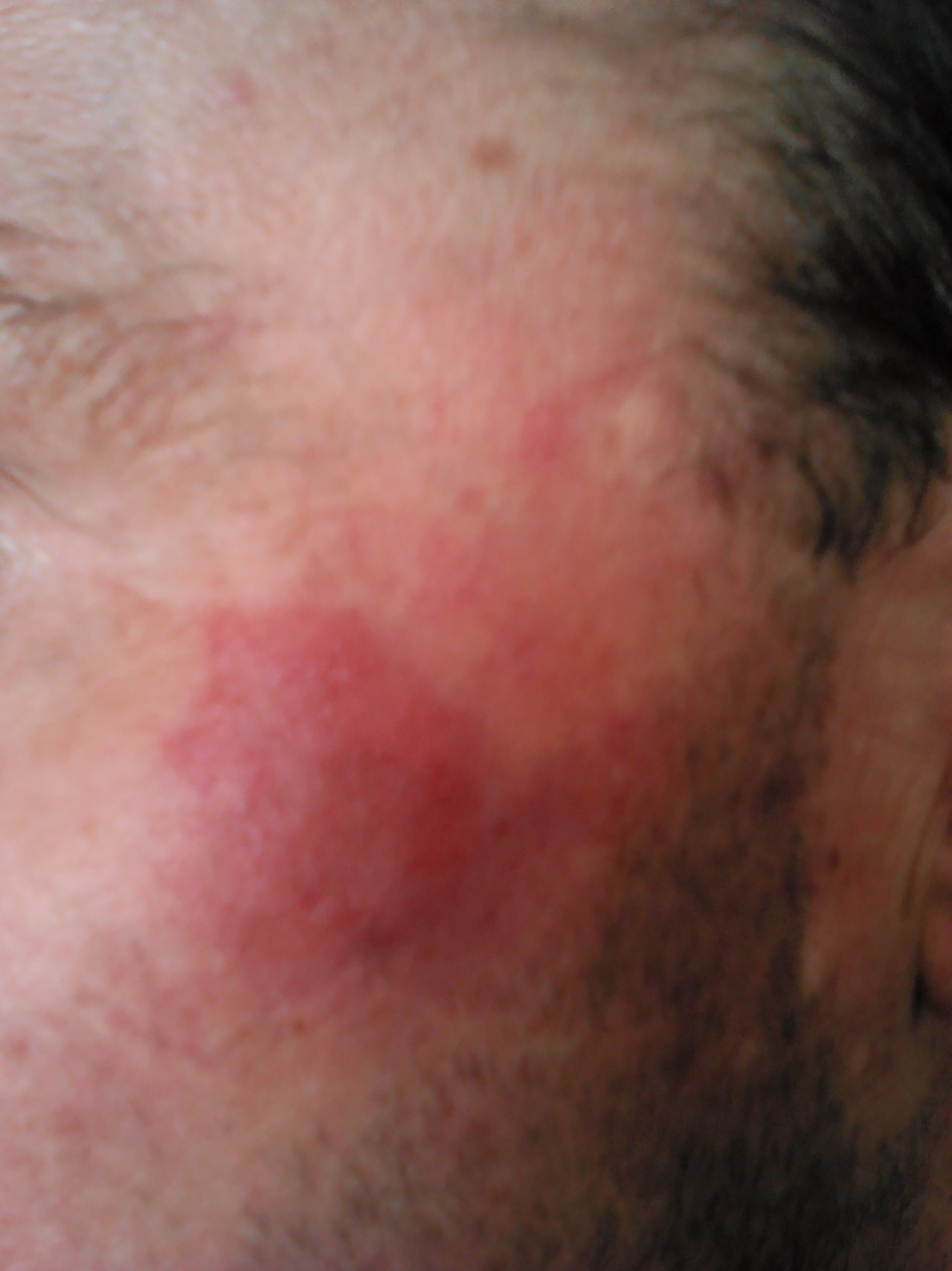 Увеличены лимфоузлы у часто болеющих детей