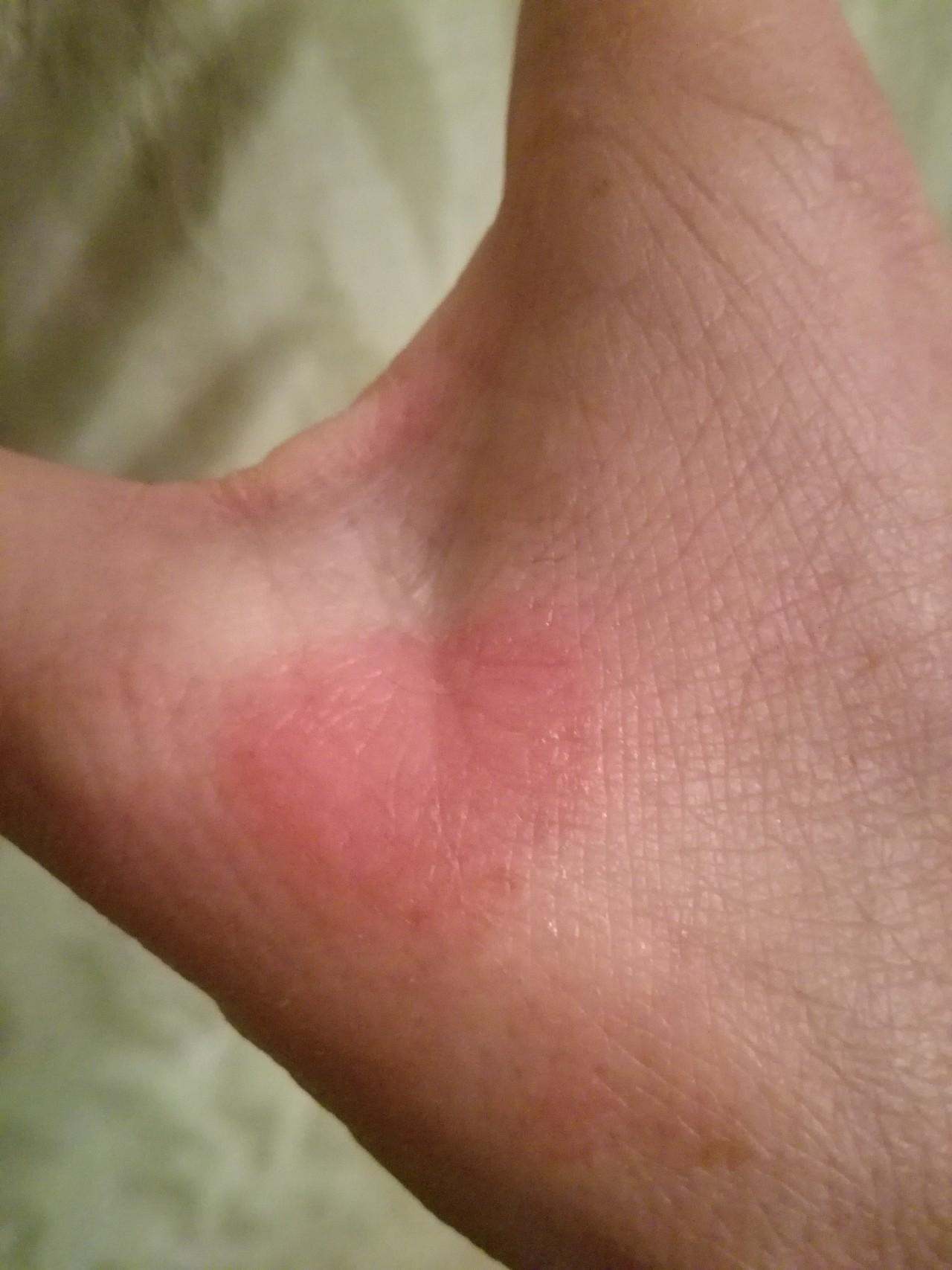 красное аллергия на руке