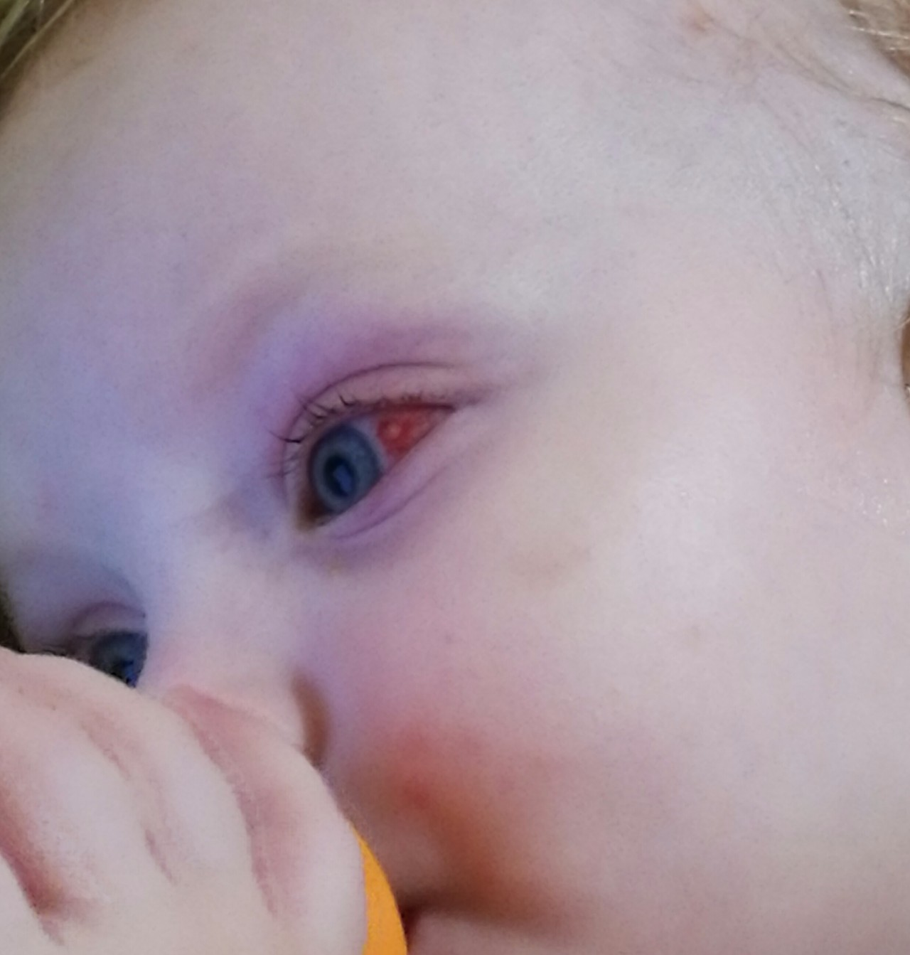 У ребёнка красные глаза когда делают фото