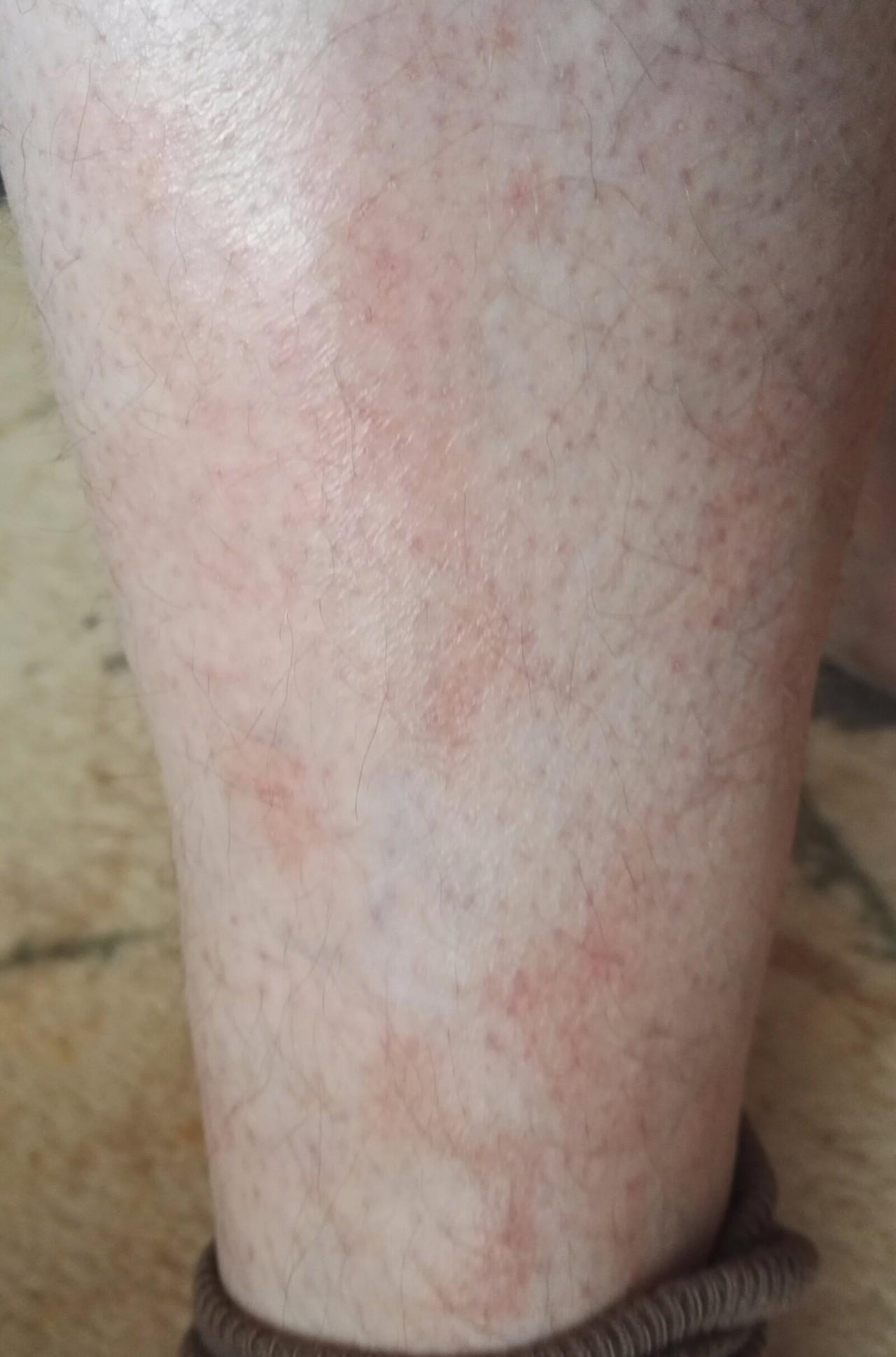аллергия на красную смородину