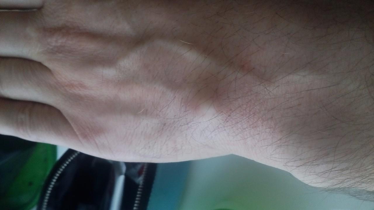 нарост на запястье руки парни