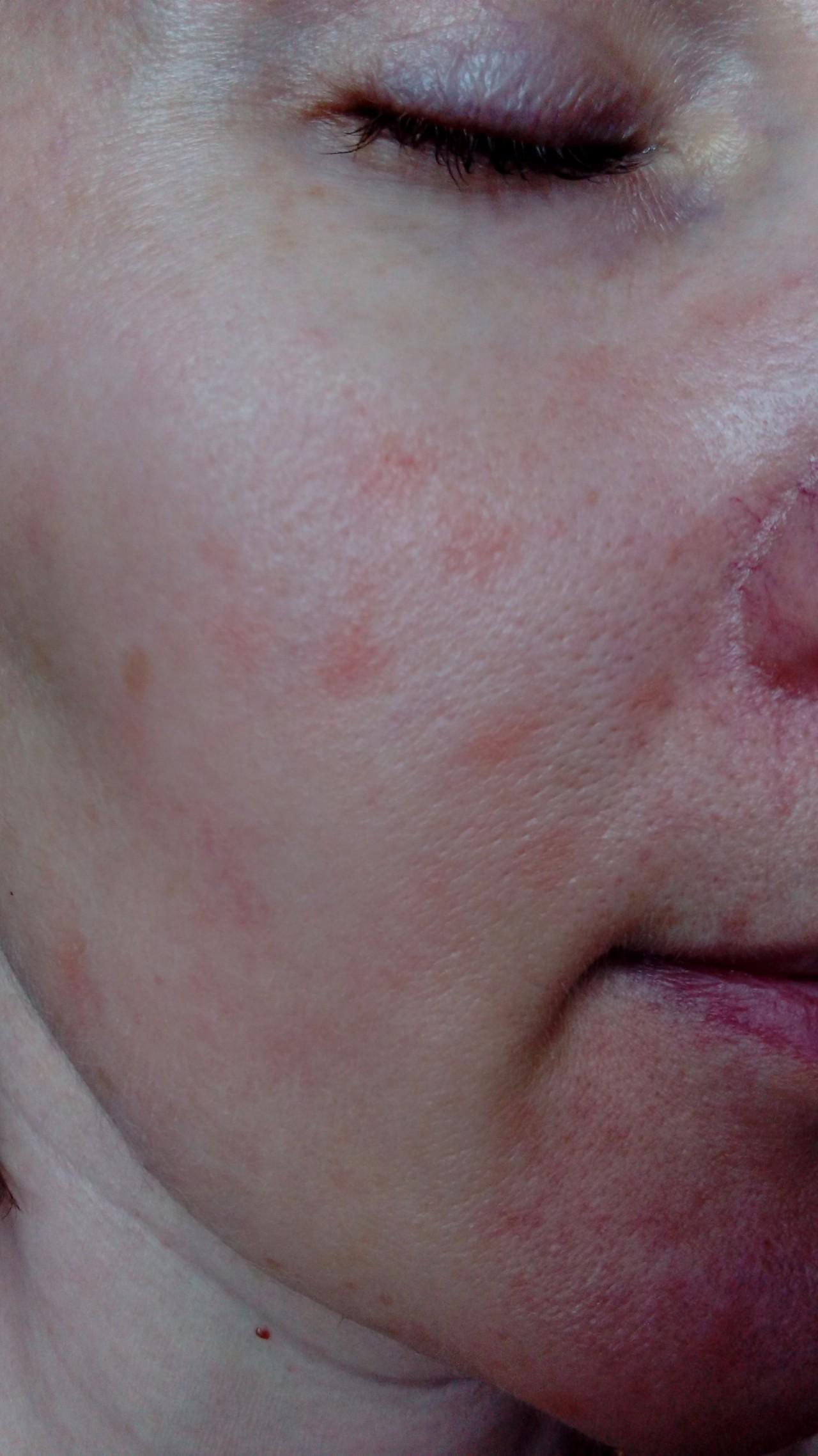 Как лечить красные шелушащиеся пятна на лице