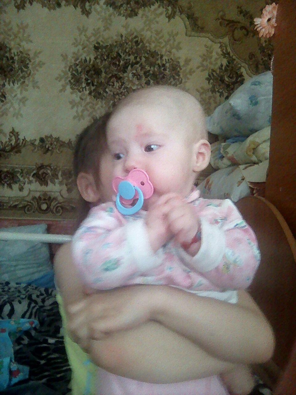 Кривошея у ребенка с 3 месяцами