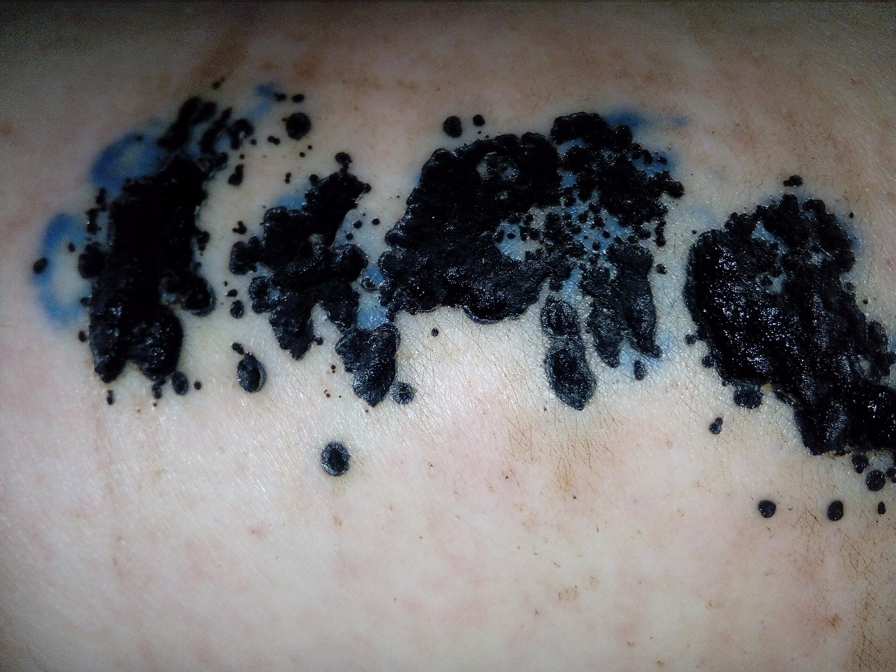 аллергия на красное тату
