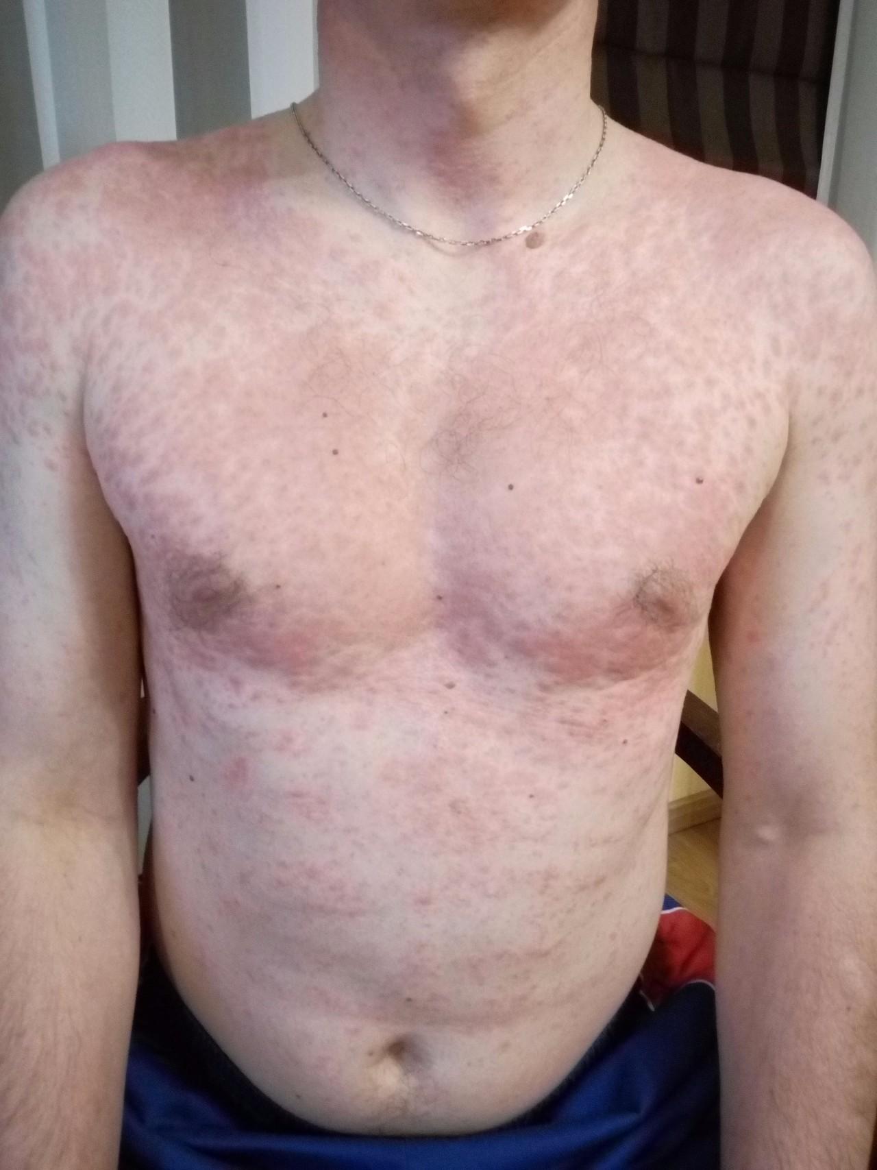 Красная сыпь на шее плечах