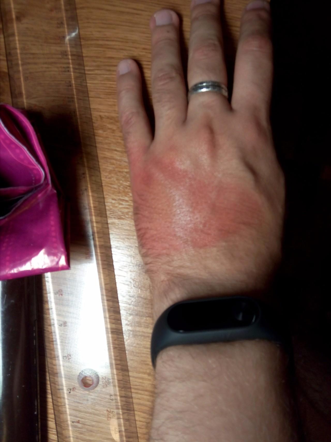 На руке ожог от кипятка в домашних условиях
