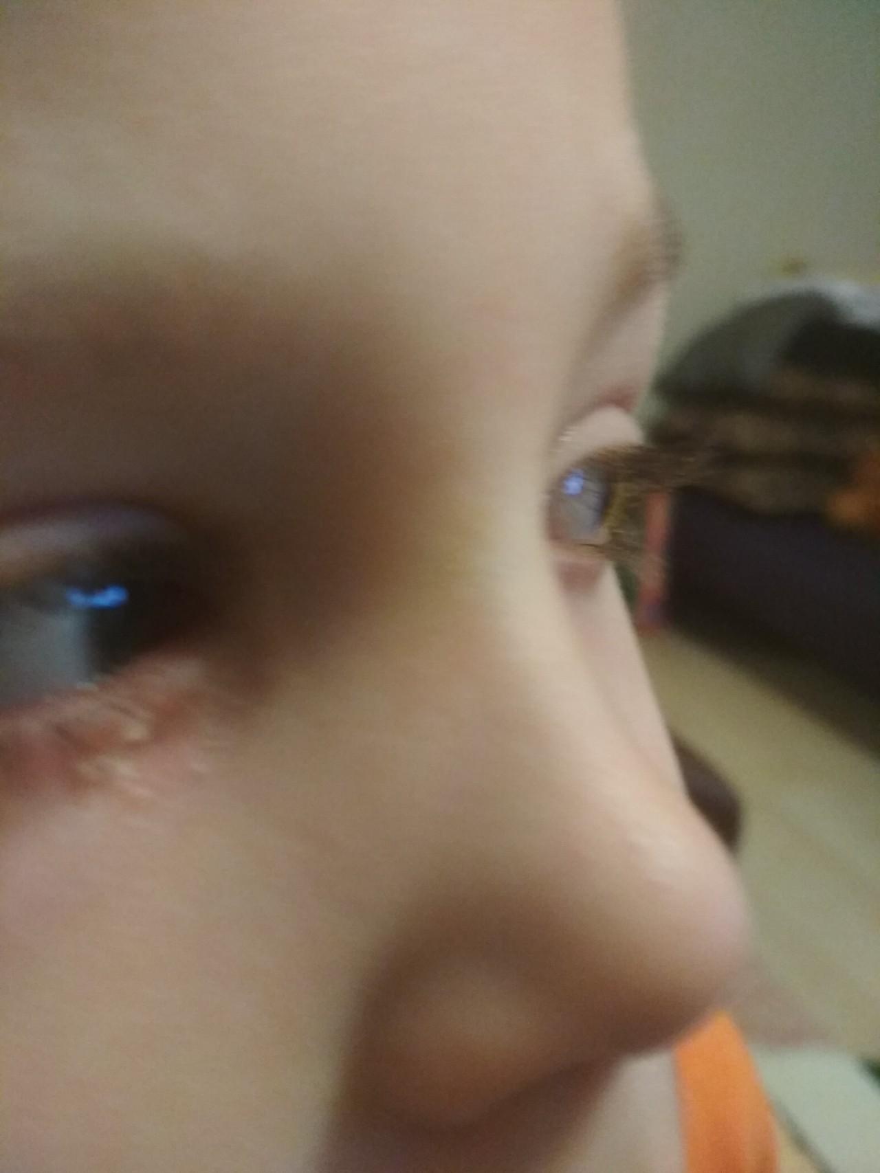 Холязионы век у ребенка фото с пояснениями