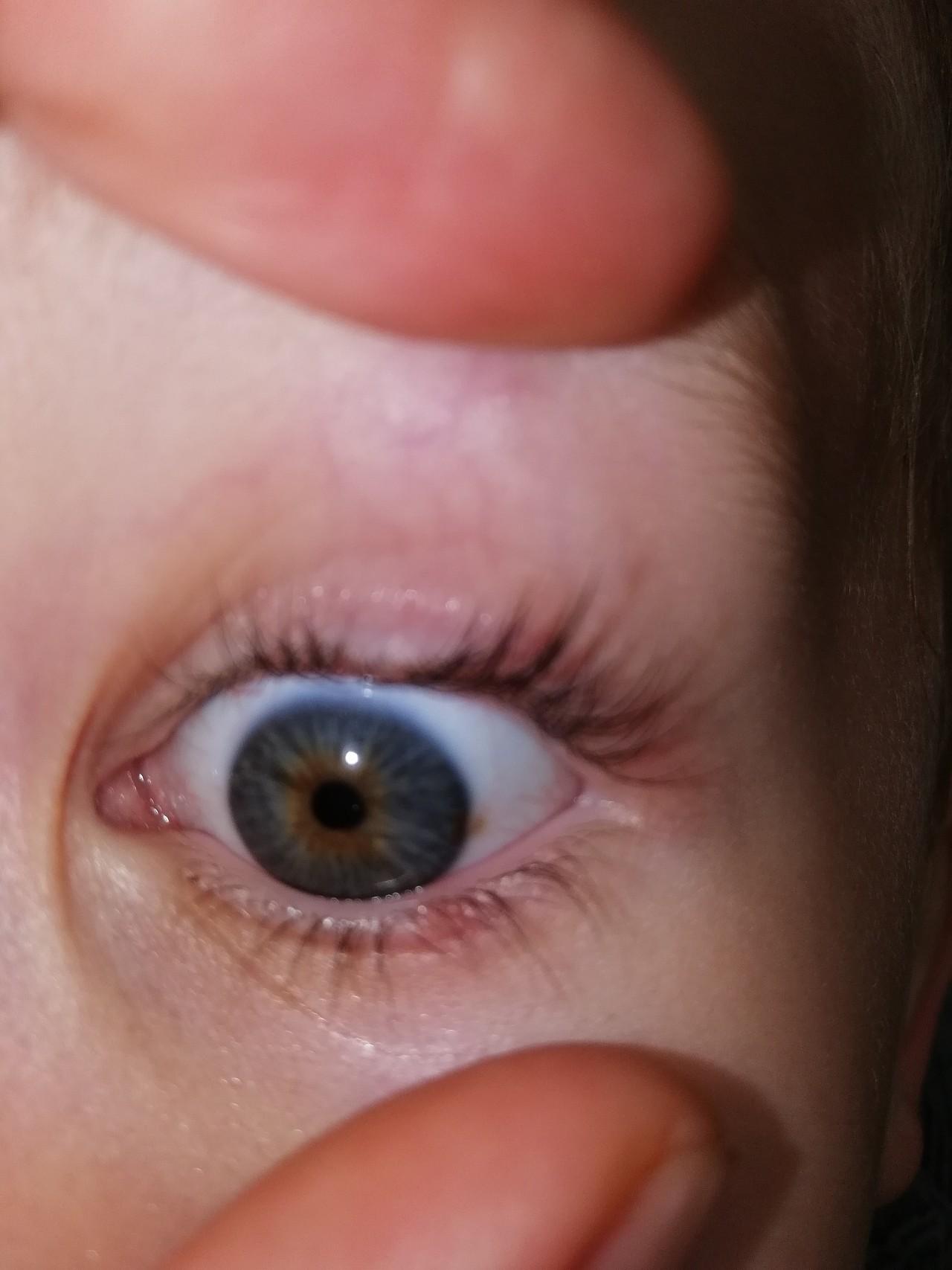 Потому что внутренняя часть век покрыта жидкостью и при прищуривании глаза,эта жидкость попадает на глаза и раскладывает свет по спектрам,что делает изображение радужным.