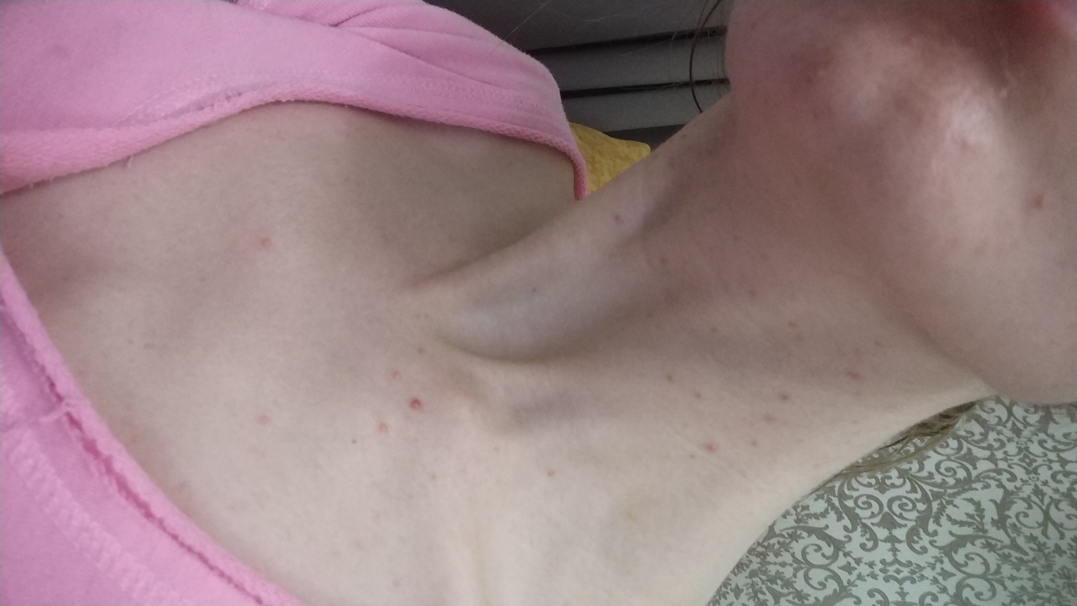 Красные болючие прыщи на груди