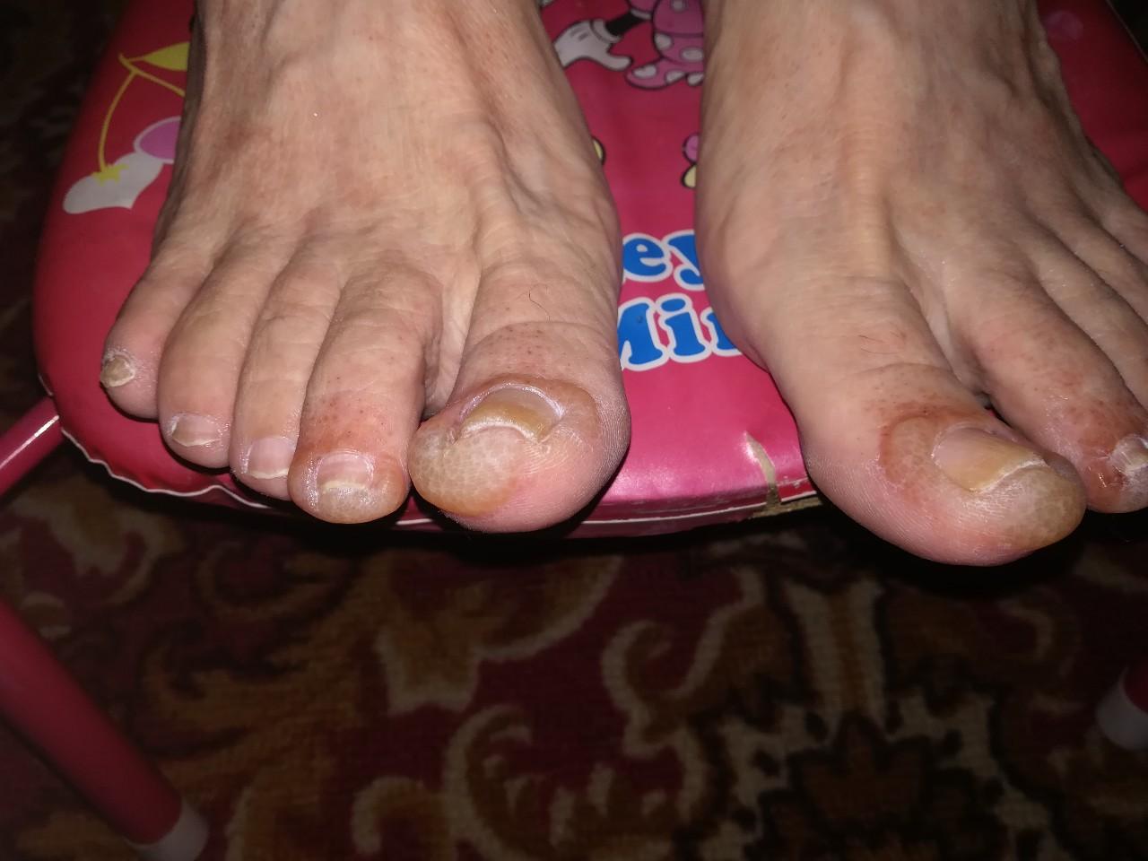 Член между пальцев ног фото, Дрочит хуй ногами увлекательное порно фото порева 2 фотография