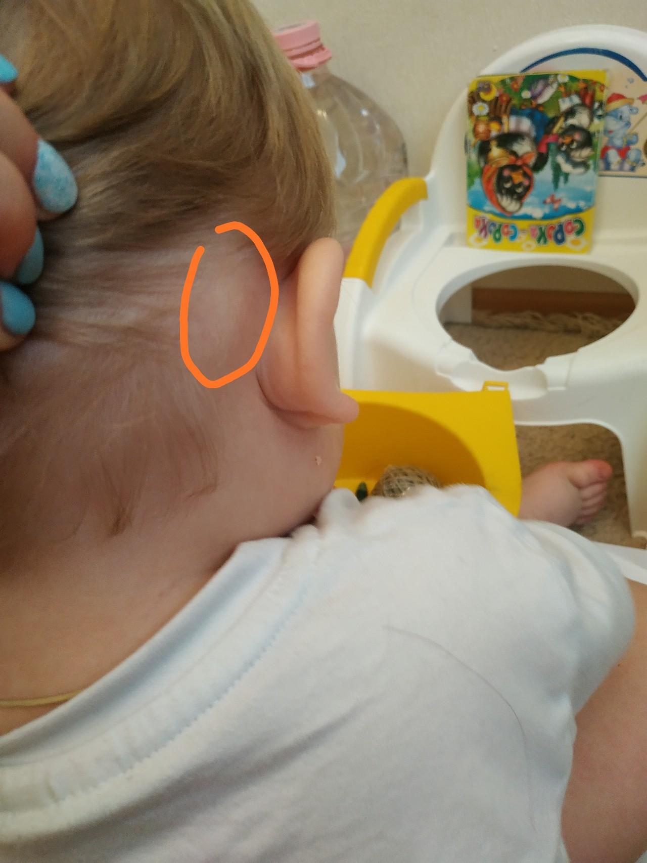 Шишка за ухом у ребенка, в особенности если это новорожденный младенец, может быть совершенно незаметна, поскольку лимфоузлы у них плохо прощупываются.