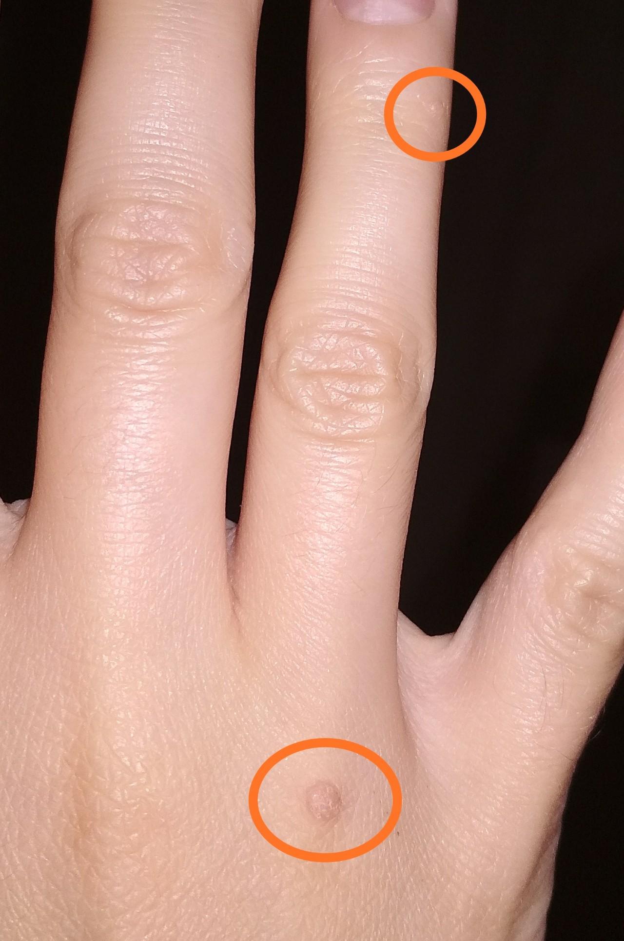 безымянный палец правой руки фото купить низкой цене