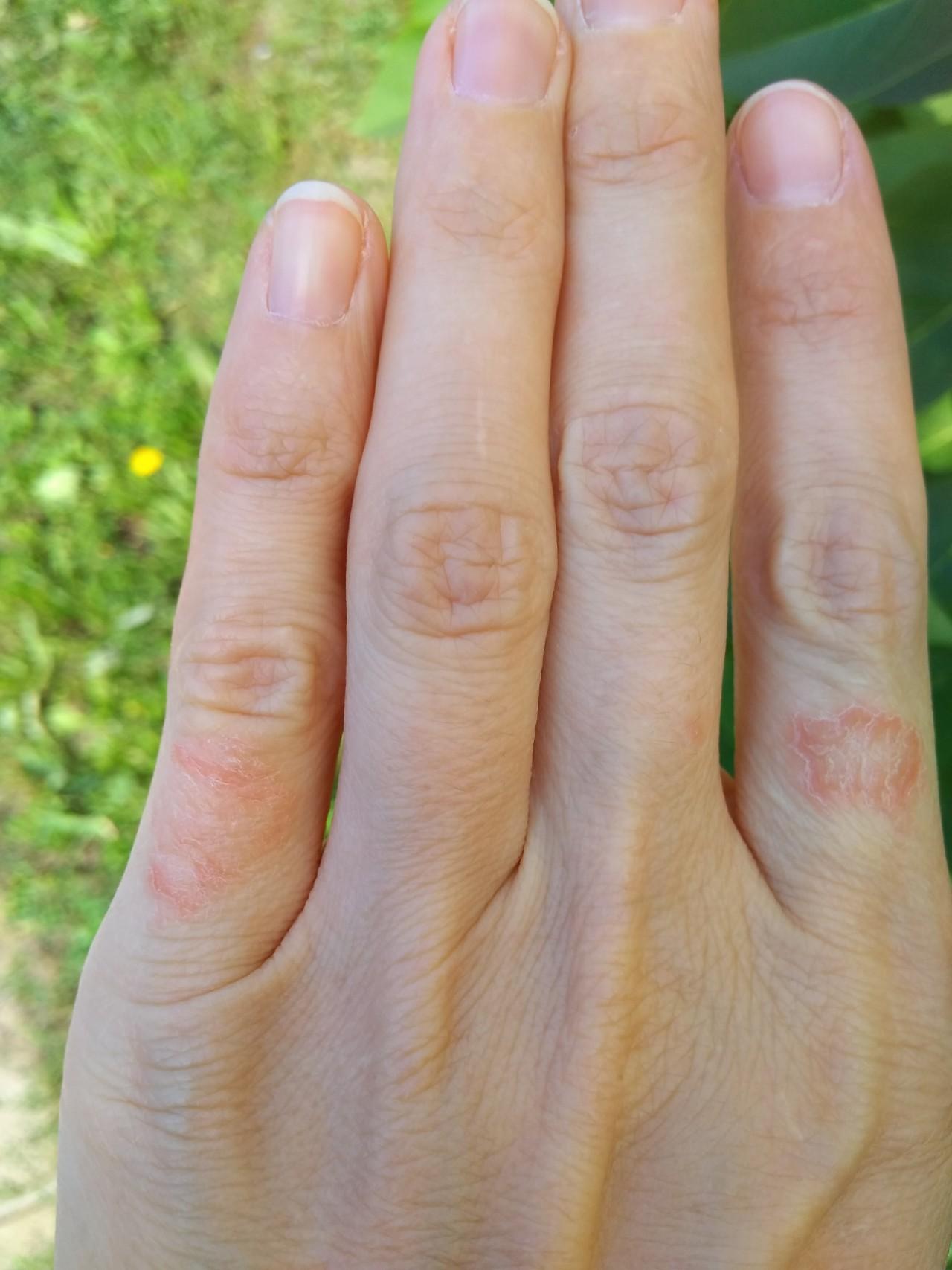 Пятна на пальцах картинки