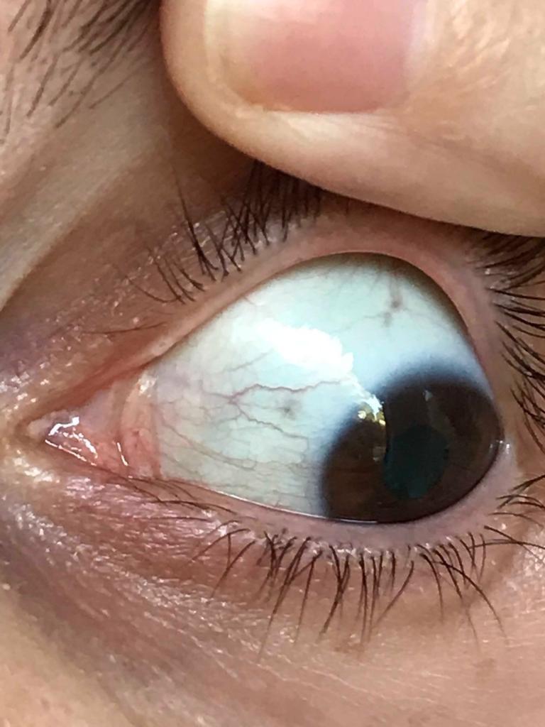 выработать на фотографии отбелить белок глаза делать, если