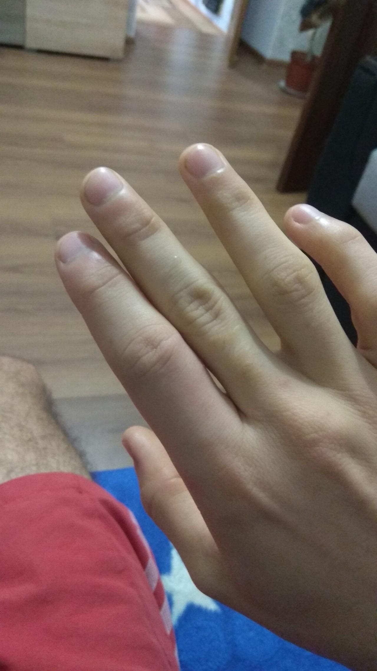 картинка опухший палец ощутила, когда