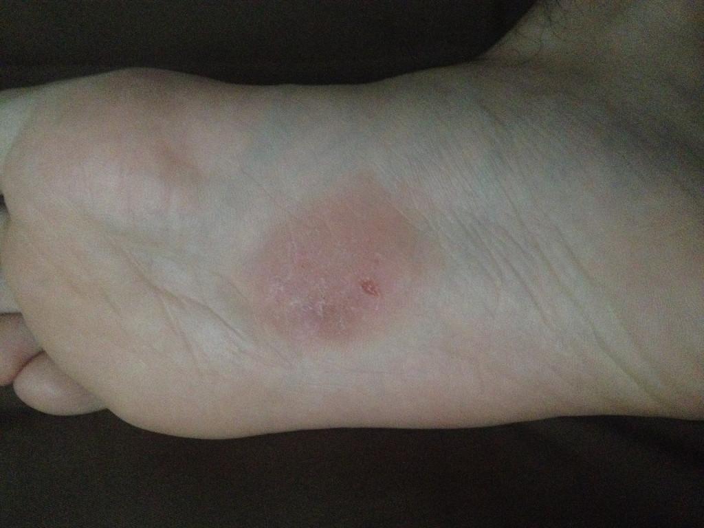 может ли быть аллергия от гель лака