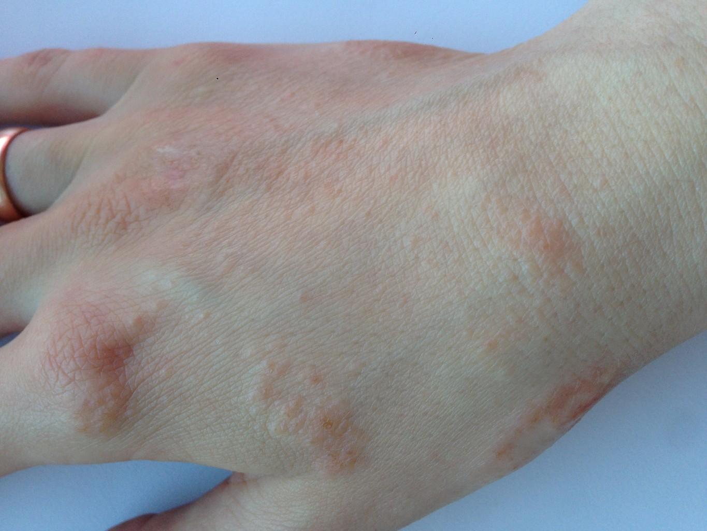 Красная сыпь на руках у взрослого: фото с описанием