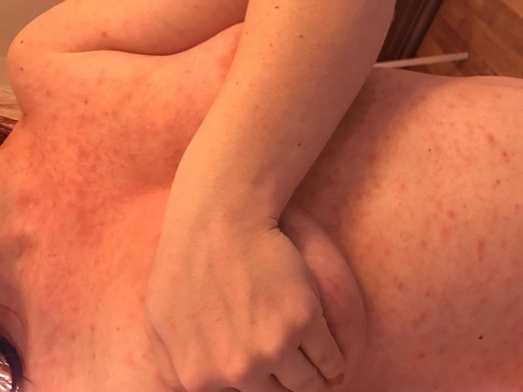 аллергия пятнами по телу у взрослого