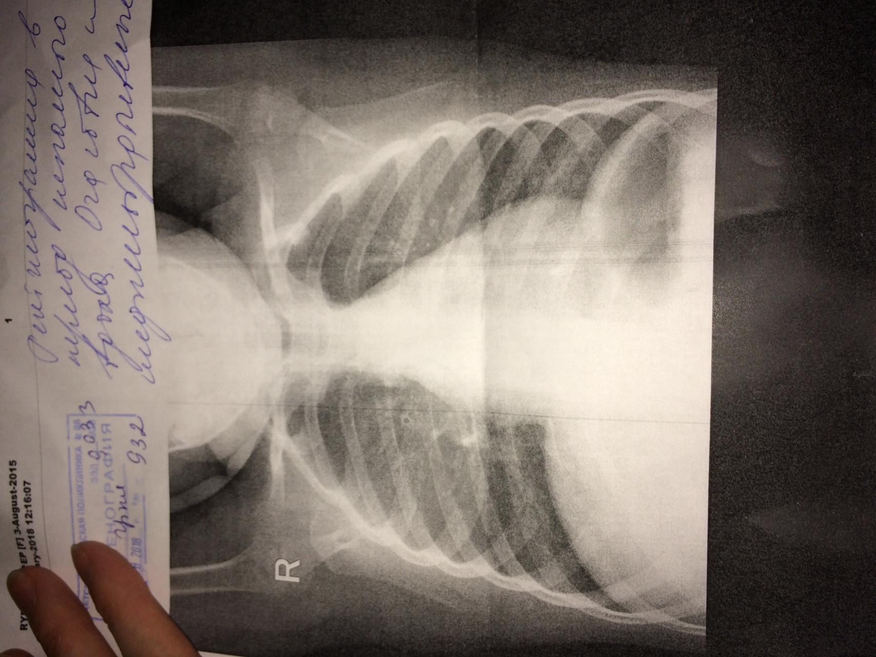 Как выглядит фото рентгена легких у ребенка