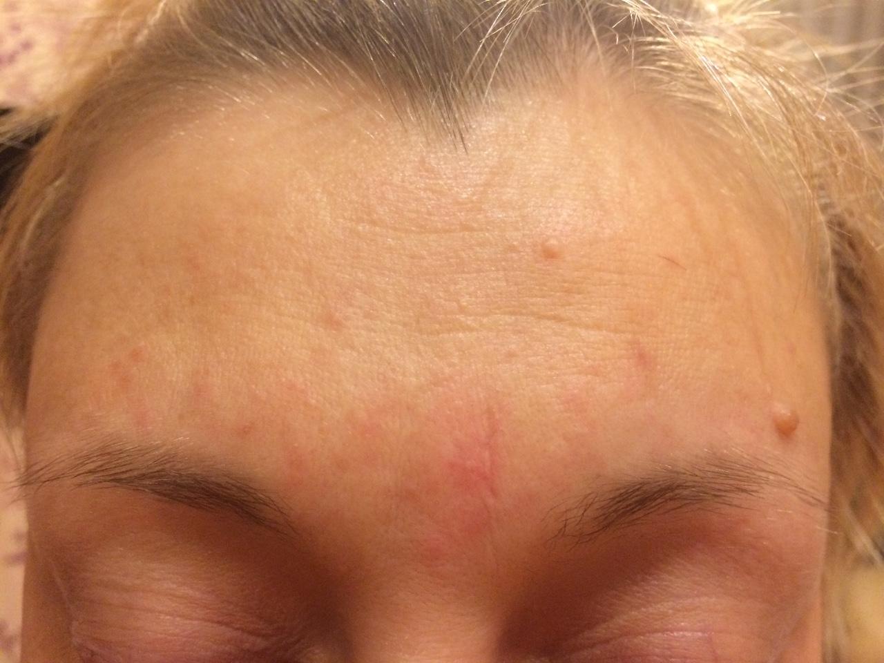 красная сыпь на лице чешется