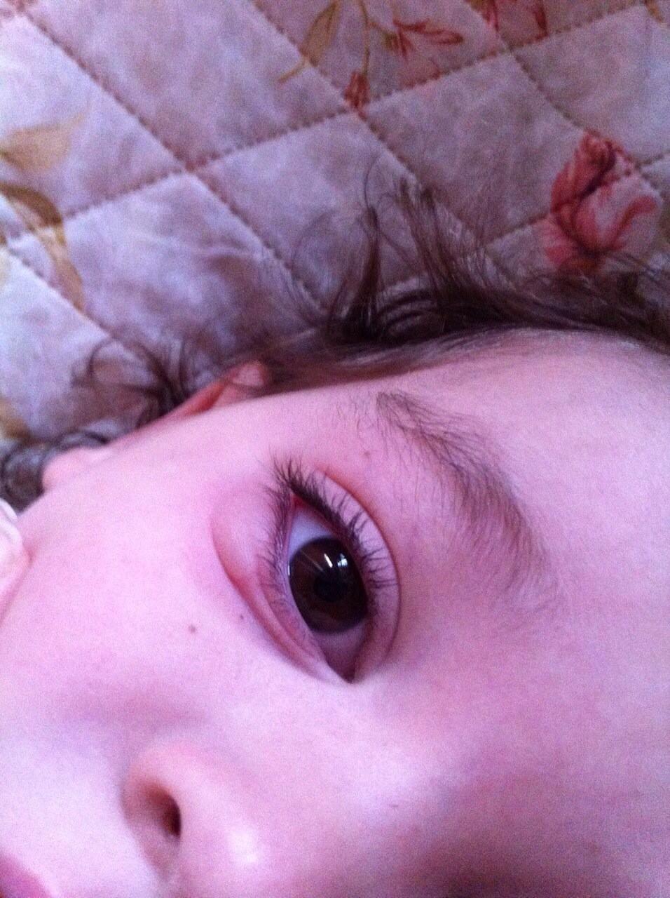 Фото опухоли глаз у ребенка