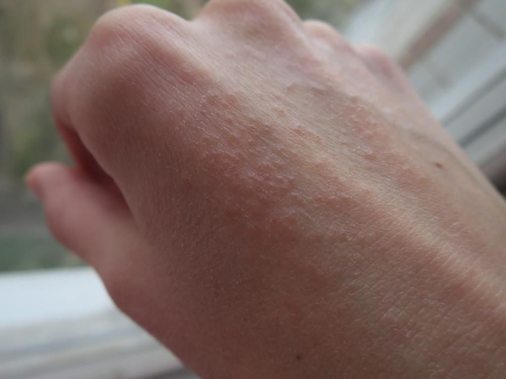 черви в коже человека болезнь