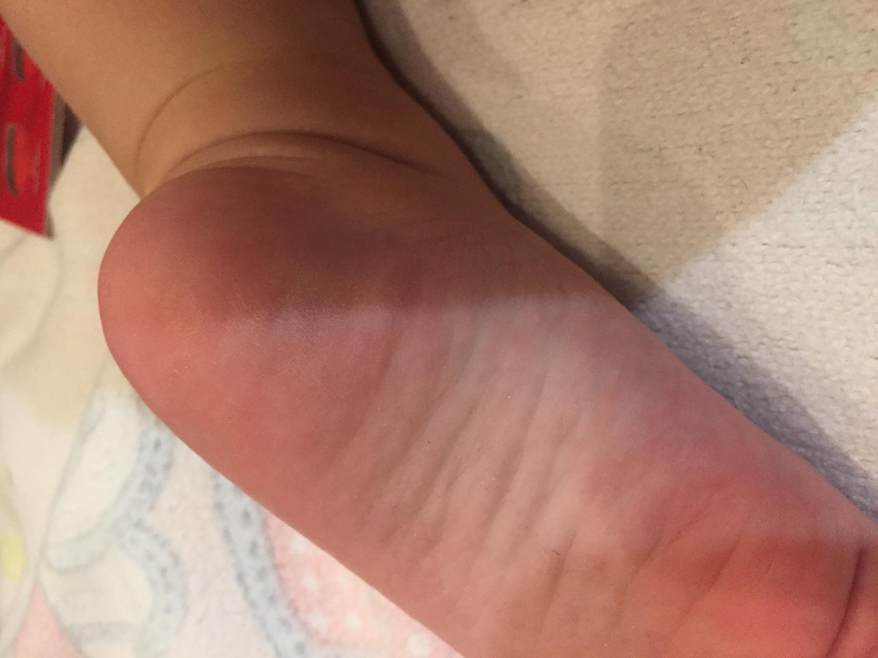 Болит рука сильно что делать