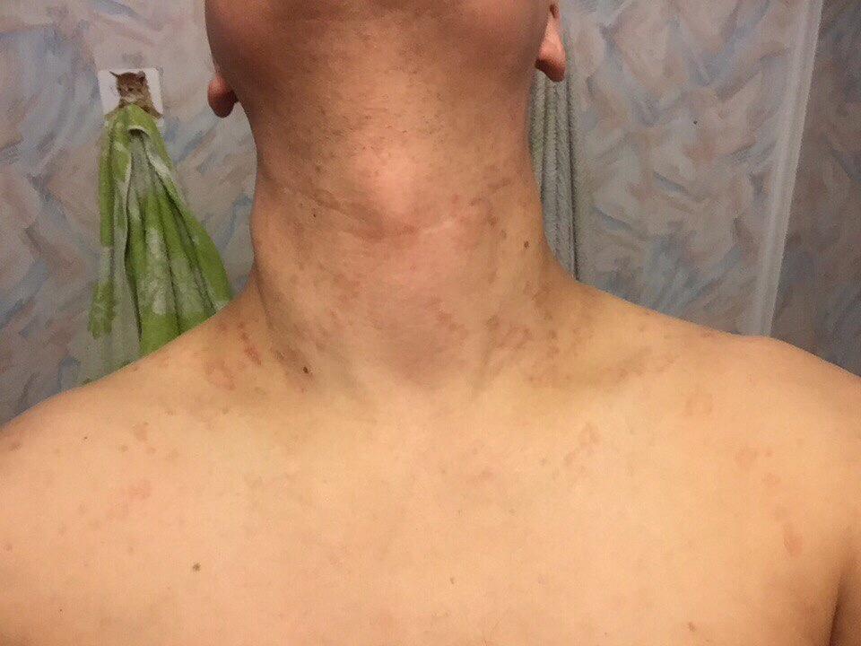 нарастания на плечах и шее фото указана
