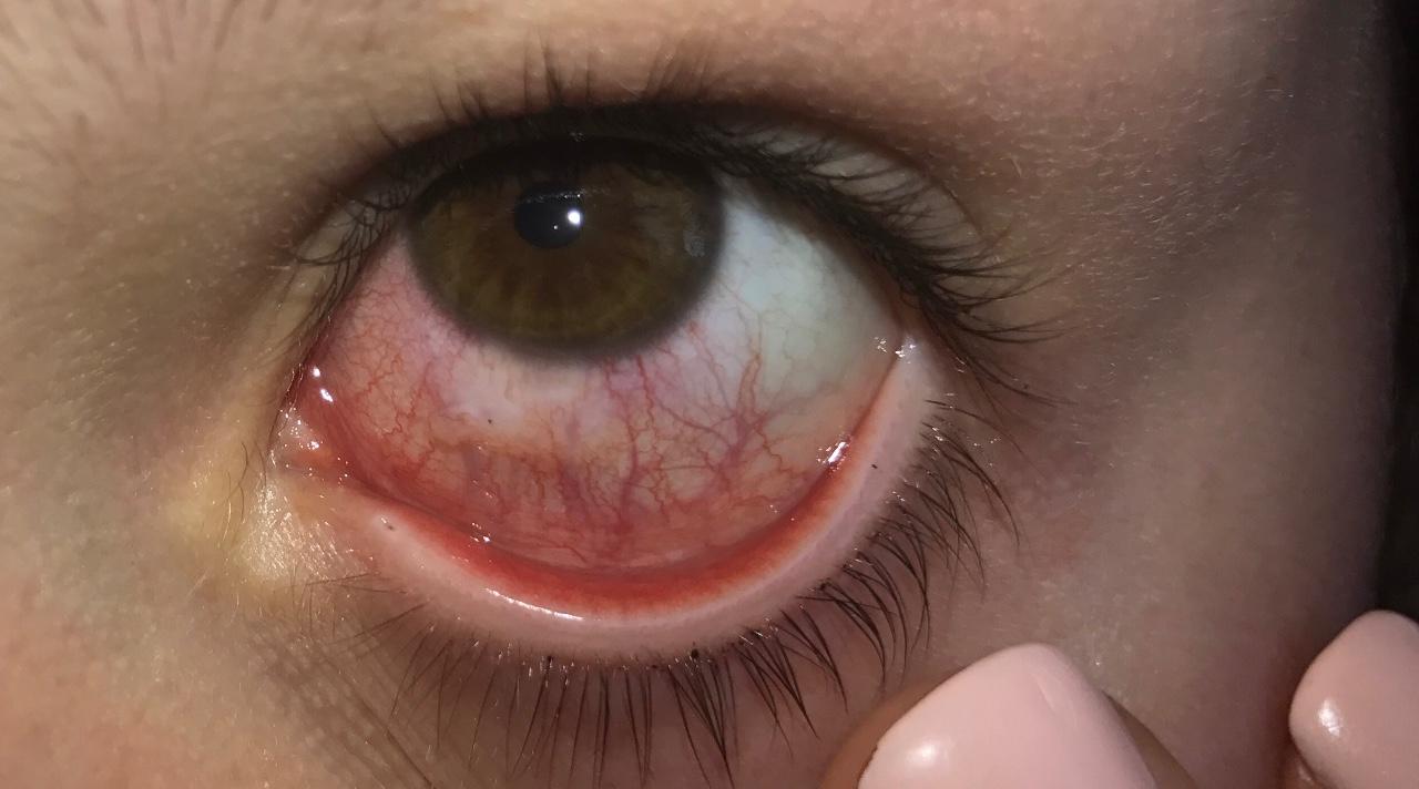Попал ногтем в открытый глаз