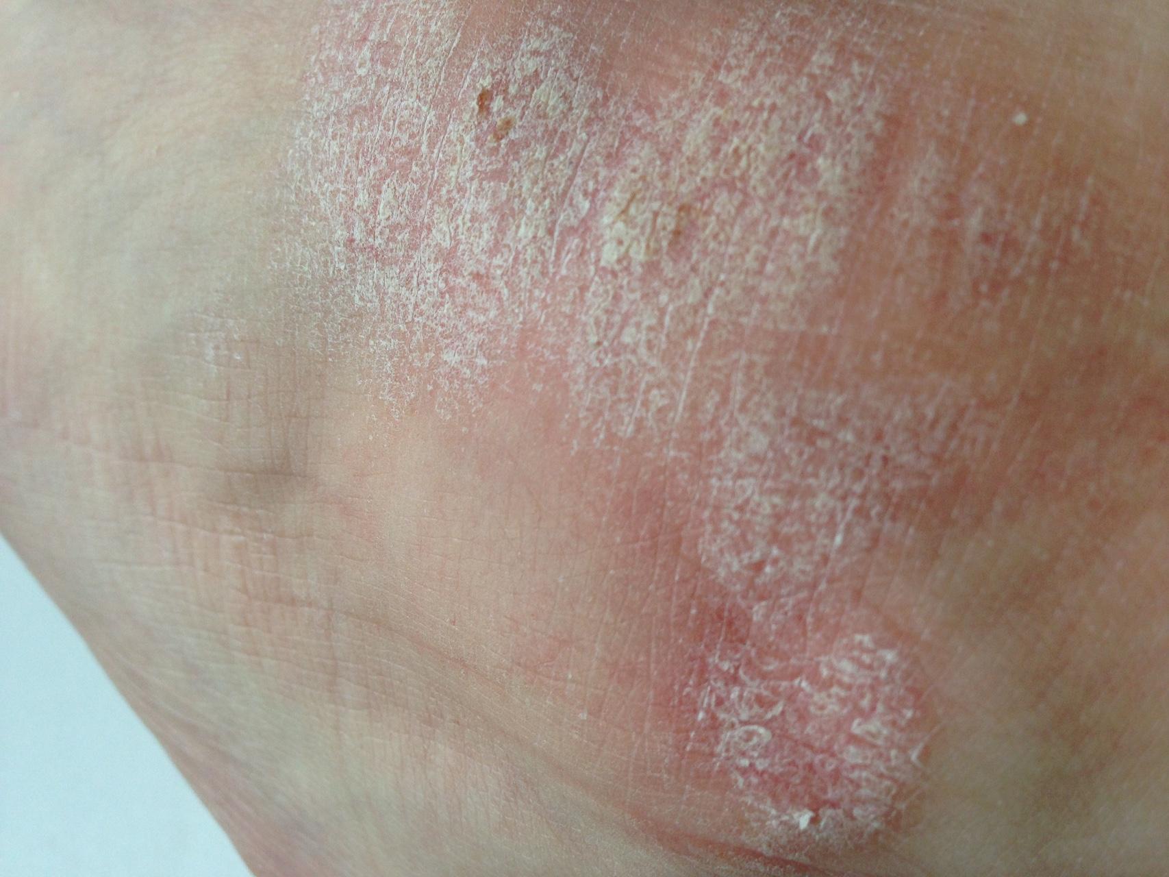 Причины псориаза ногтей