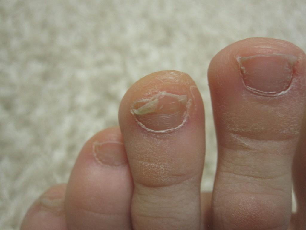 Красный грибок на ногтях