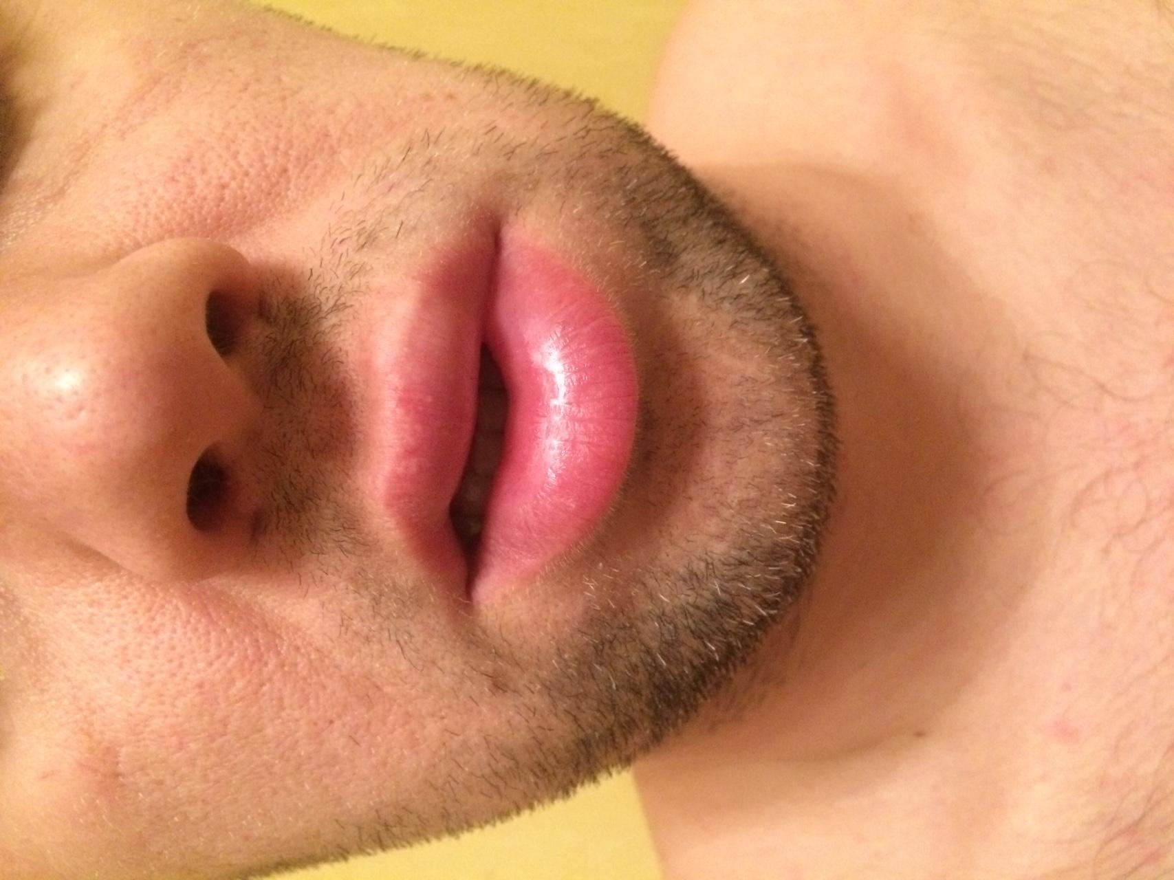 аллергия на красное лечение