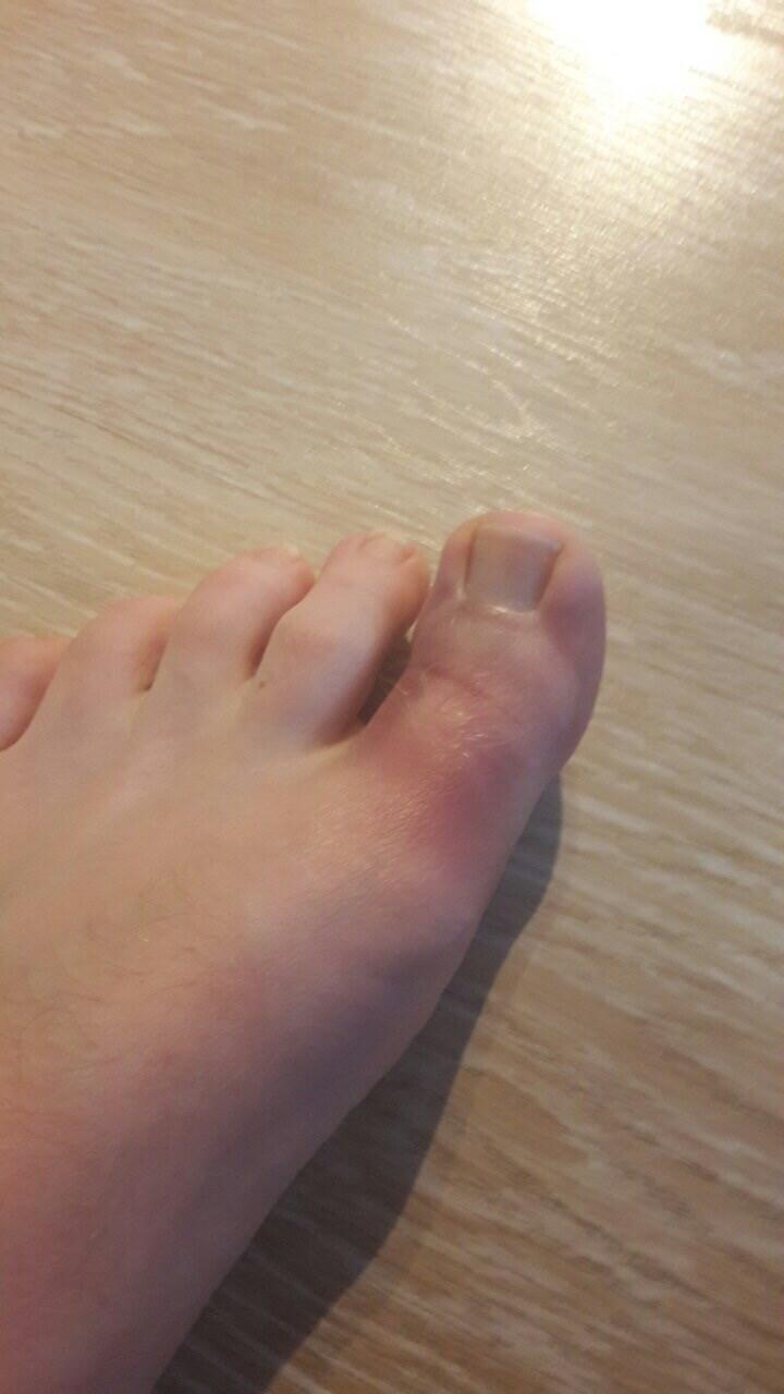 Ноготь большого пальца ноги во сне