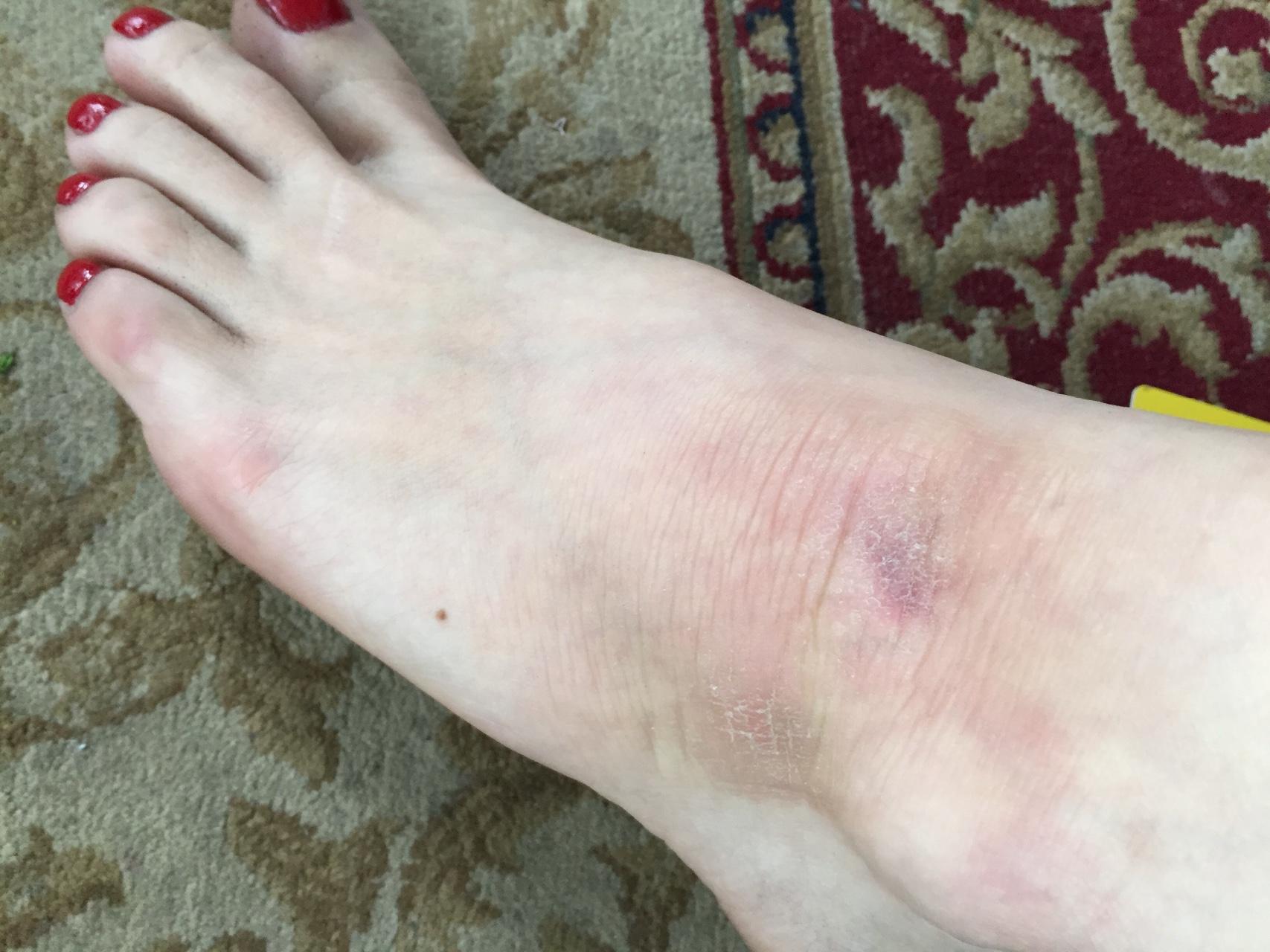 Причины боли в щиколотке