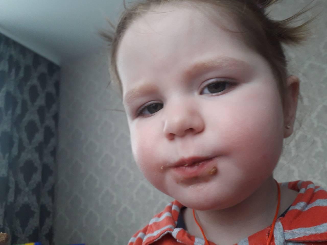 Детский нейрохирург: Метопический краниосиностоз