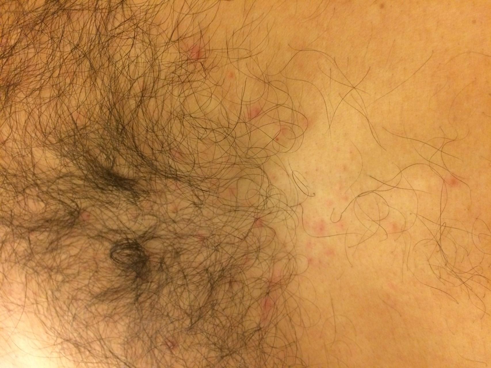 Сыпь на плечах по локоть