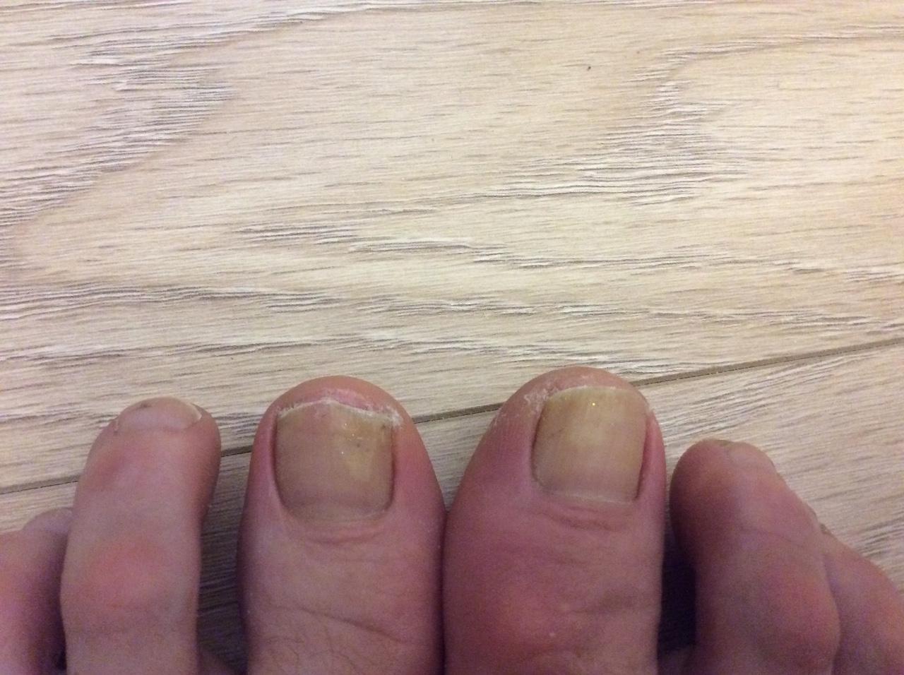 Белые пятна на ногтях: почему появляются, что означает 66