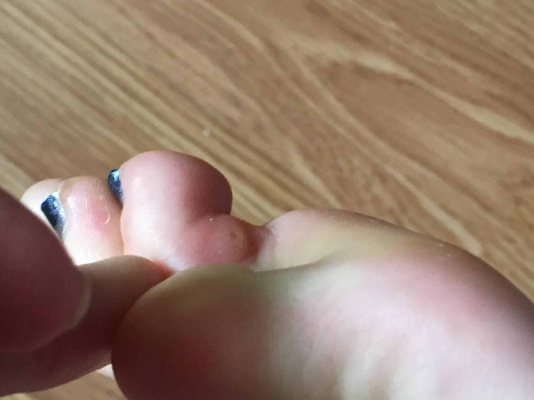 Как убрать косточку на ноге большого пальца в домашних условиях 49
