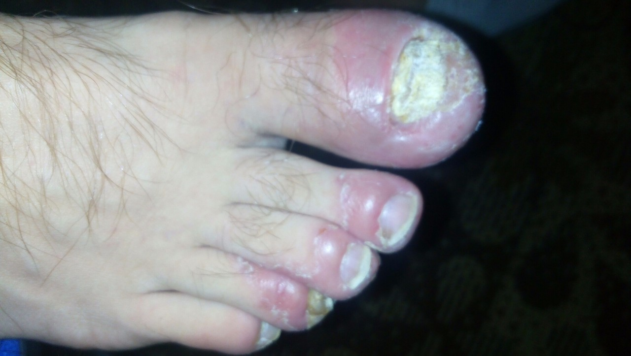 Какое хорошее лекарство от грибка на ногтях