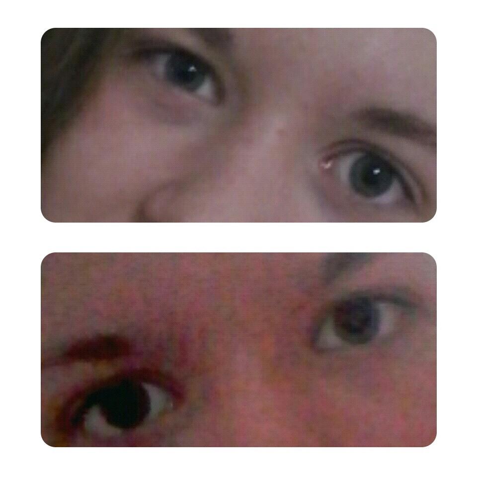 почему на фото один глаз больше другого
