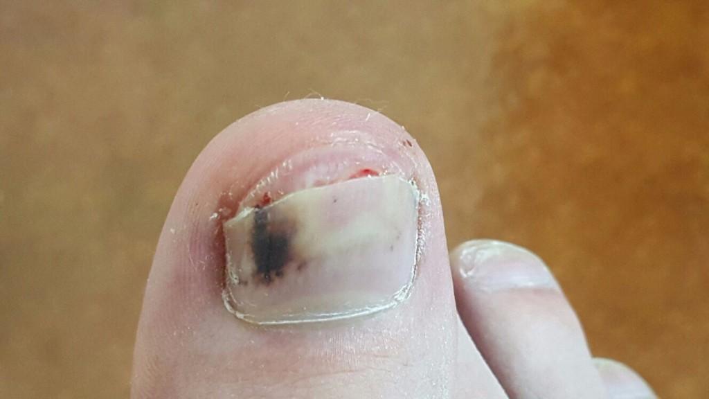 Под ногтем чернота на ноге
