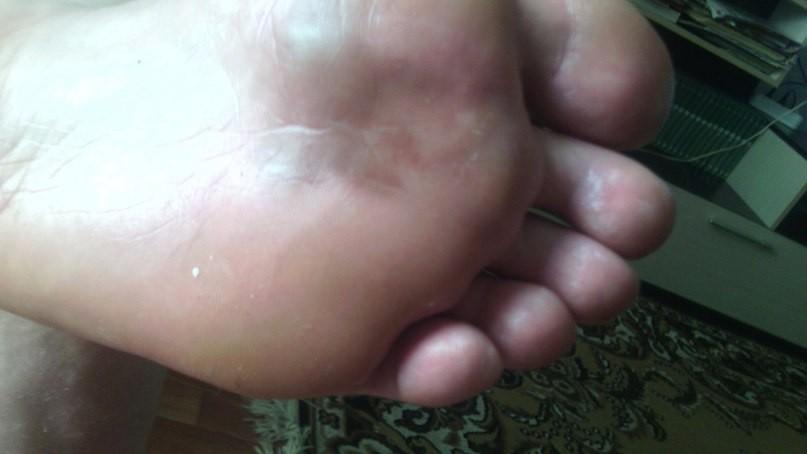 Темные пятна на ступнях ног