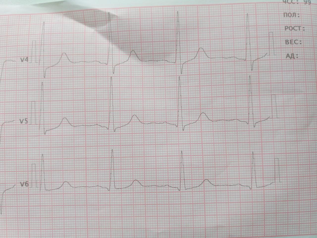 фото кардиограммы с инфарктом для них