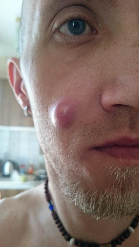 Внутренний прыщ на щеке опухла щека
