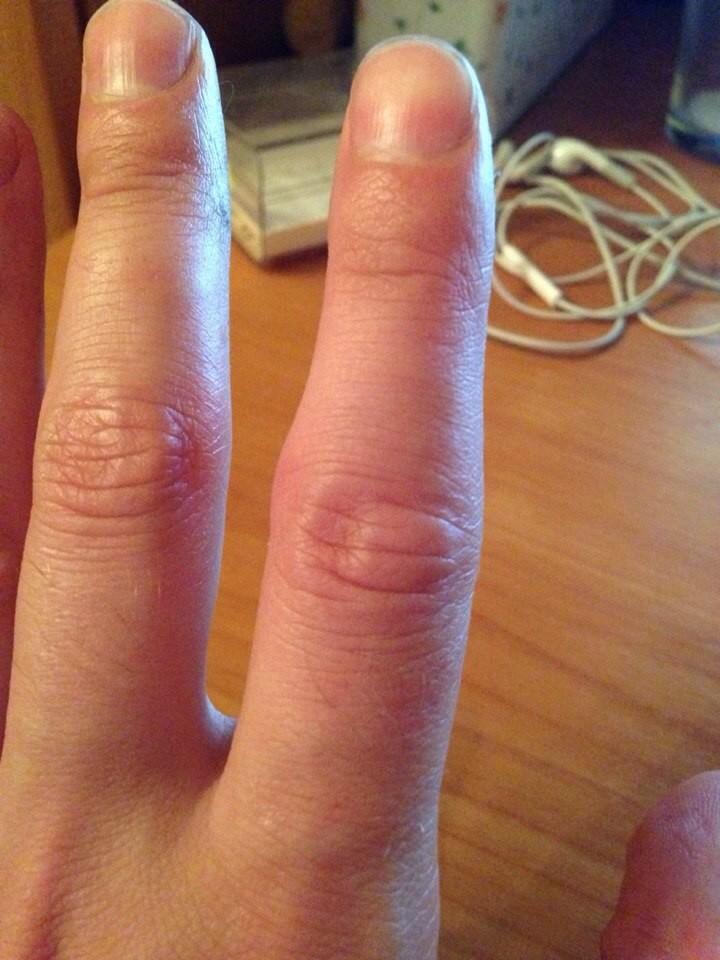 припухлость на суставах пальцев