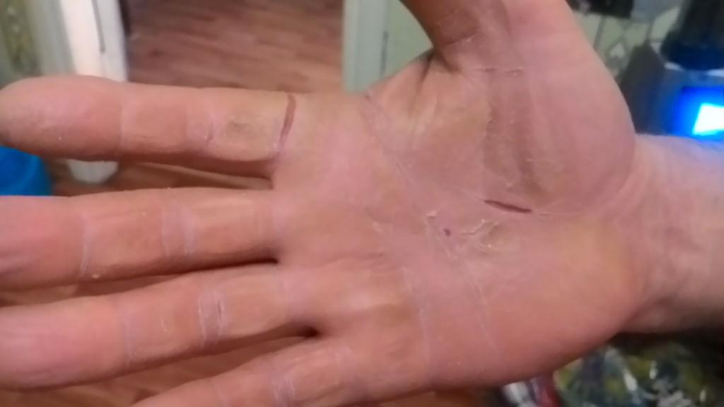 Почему чешутся ладони рук и пальцы