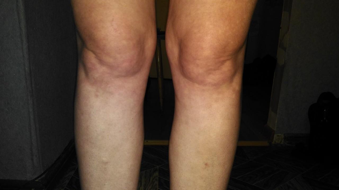 Болит правая нога от бедра до колена