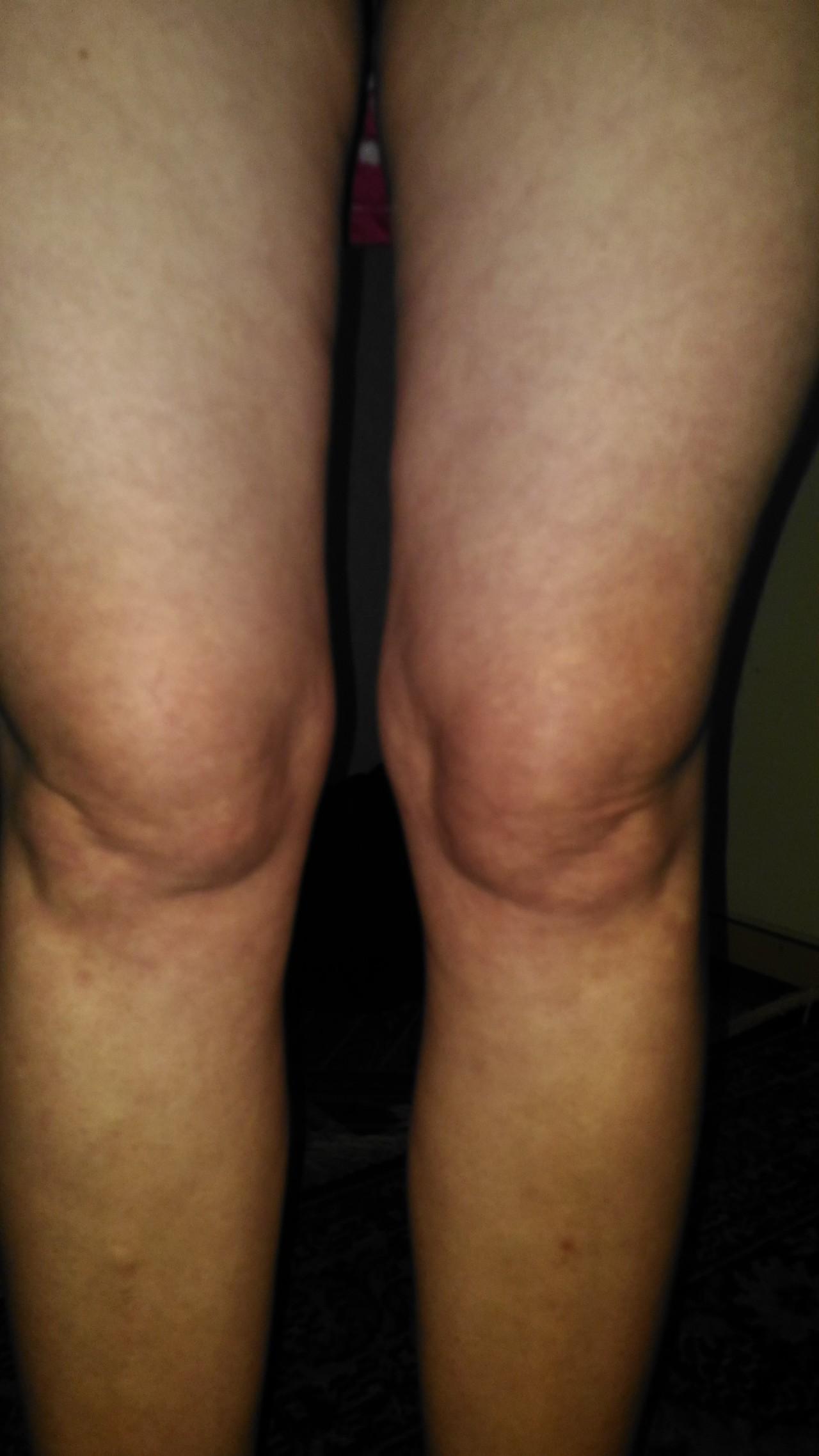 болит нога с внутренней стороны бедра