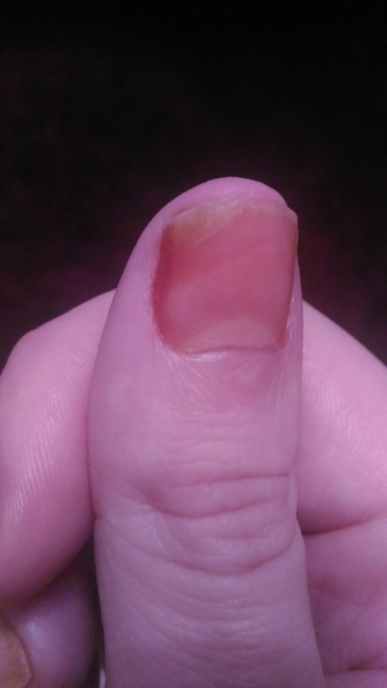 Если отслаиваются ногти на руках