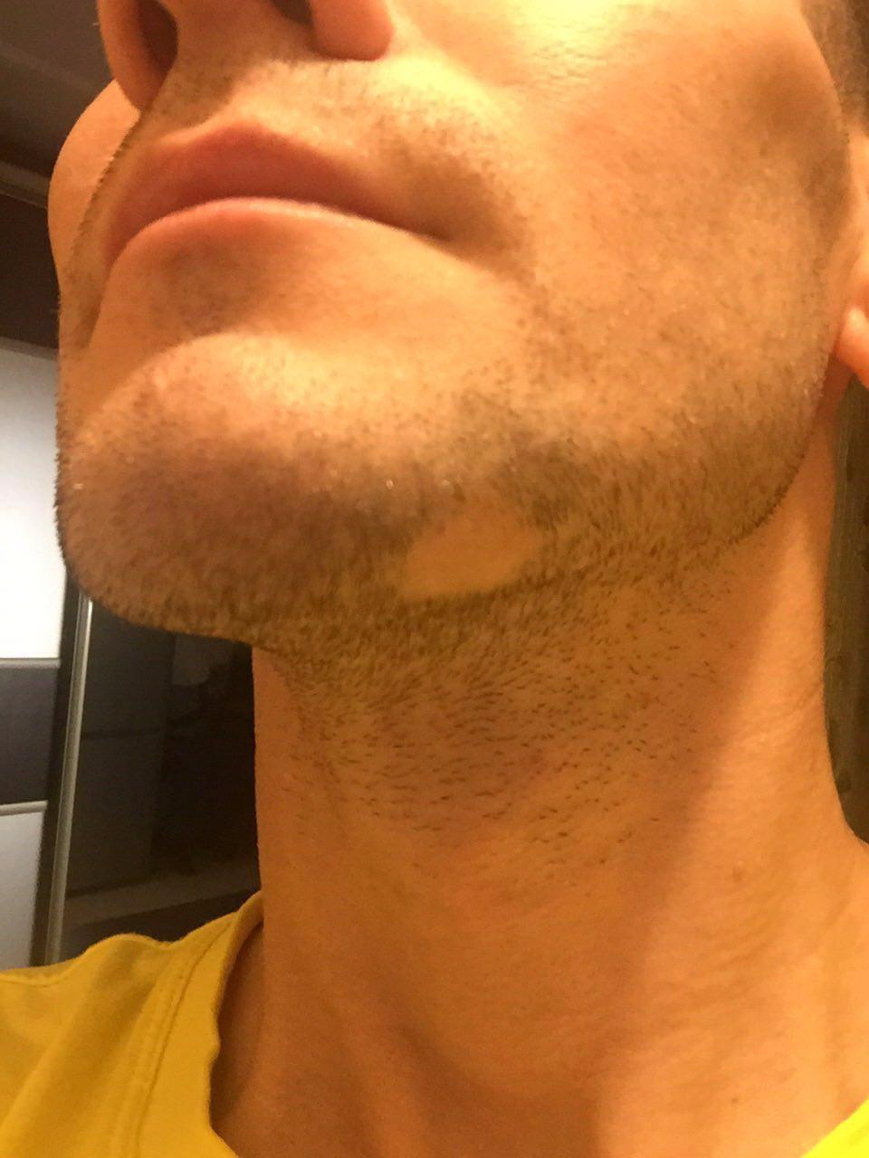 На бороде растет один волос
